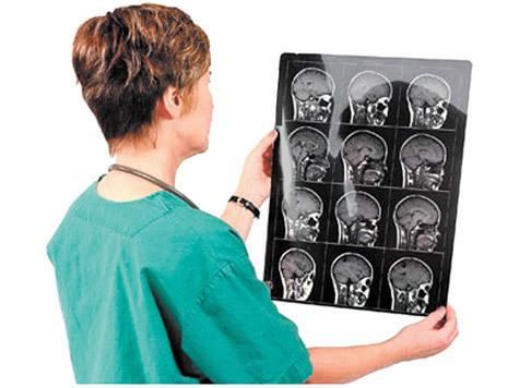 КТ-ангиография: показания, подготовка, проведение и осложнения