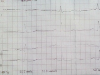 Кто расшифровывает ЭКГ: кардиолог или терапевт?