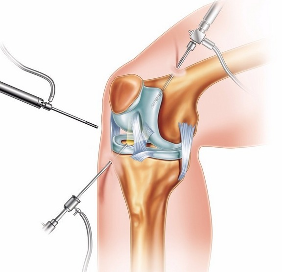 Артроскопия коленного сустава – что это такое за операция?