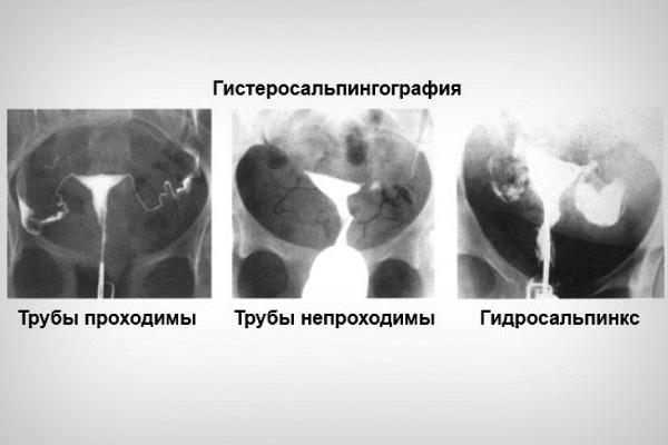 Эхогистероскопия (эхогс): показания, подготовка, результаты