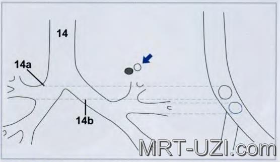 Рентгенография трахеи: показание, проведение, результаты