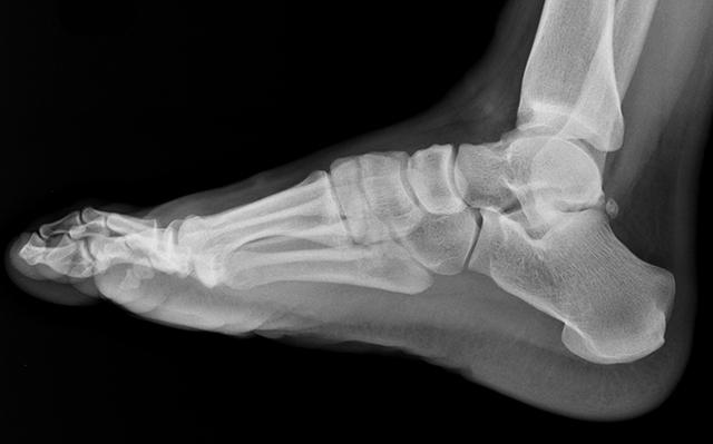 Рентген голеностопного сустава: показания, проведение, результаты
