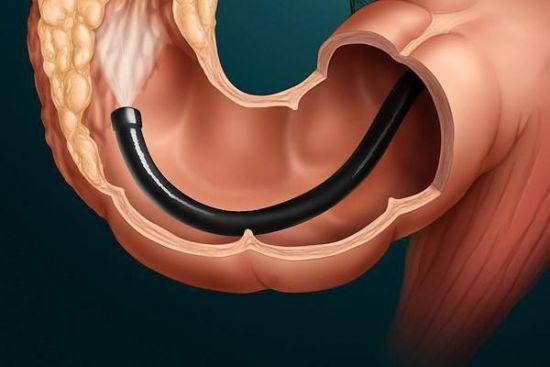 Колоскопия кишечника: что это такое и как к ней готовиться?