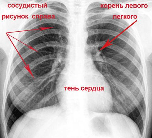 Затемнение в легких на рентгене – что это может быть?
