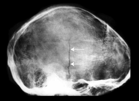 Рентген головы (костей черепа) – что показывает?