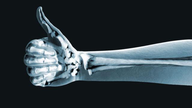Как часто и сколько раз можно делать рентген?