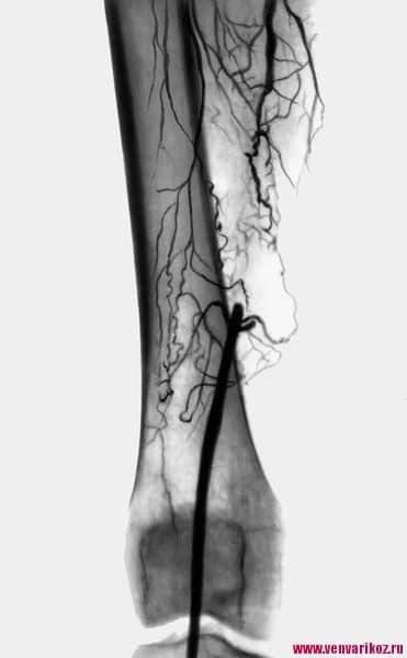 Ангиография сосудов нижних конечностей – что это, как проводится?