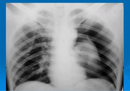 Пневмоторакс на рентгене: признаки, опасность, альтернатива