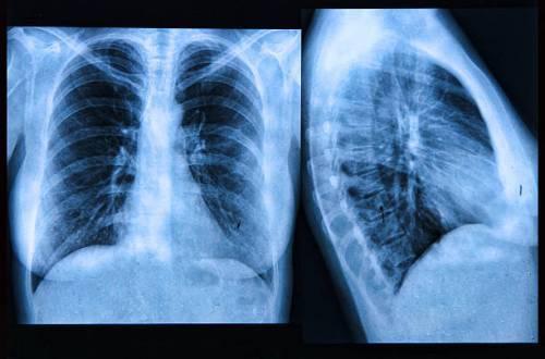 Эмфизема легких на рентгене: признаки и симптоматика