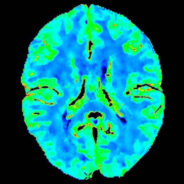 Ангиография сосудов головного мозга – что это такое?