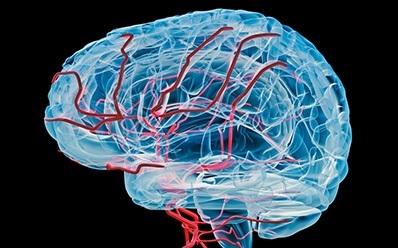 Компьютерная томография сосудов головного мозга