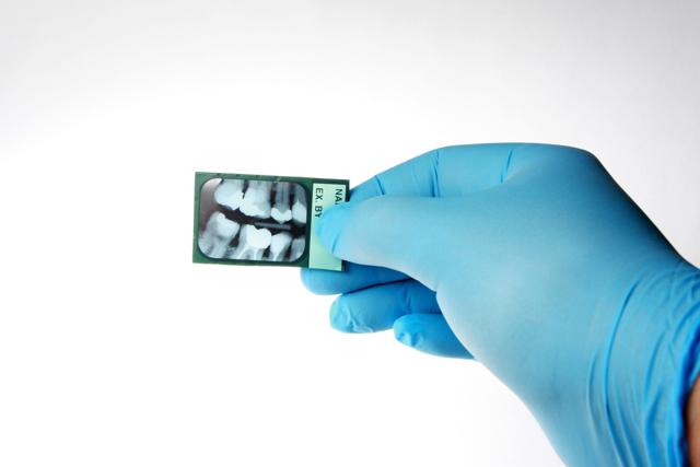 Рентген челюсти человека: показания, проведение, результаты