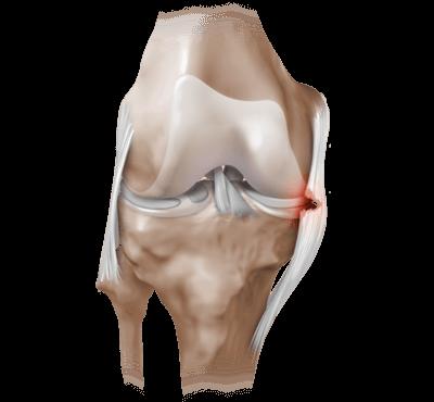 Артроскопия суставов – что это такое?