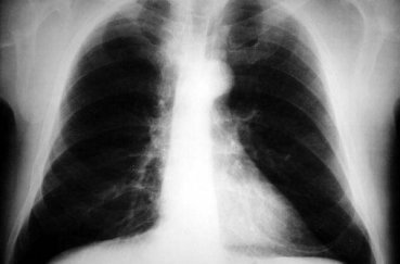 Рентген (рентгенография) – что это такое?