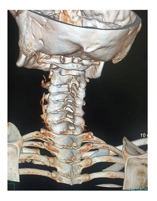 КТ позвоночника и суставов