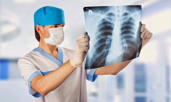 Рентгенологическая картина при эксудативном плеврите на рентгенограмме