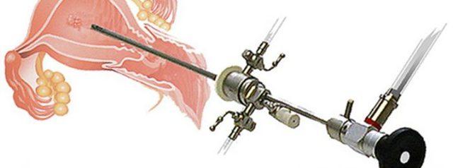 Офисная гистероскопия – что это?