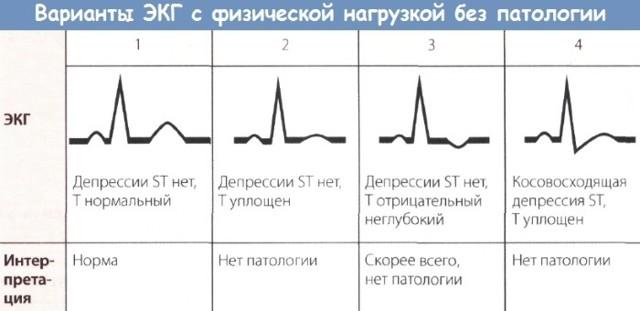Холтеровское мониторирование ЭКГ: что это такое?