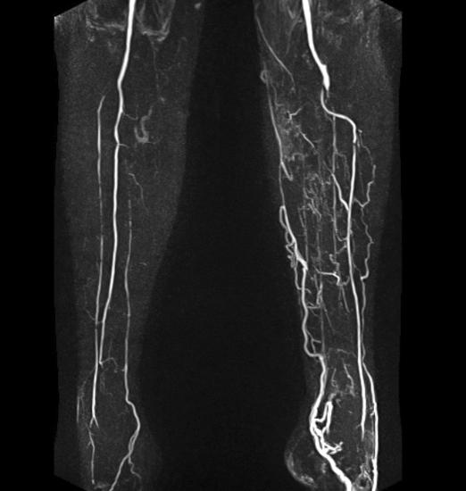 МР-ангиография сосудов головного мозга и шеи