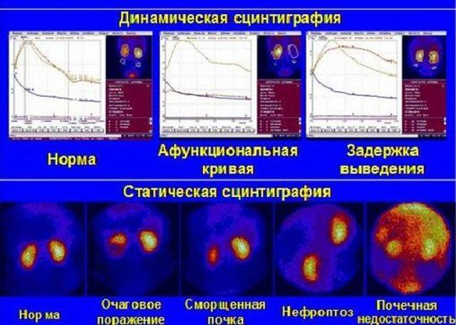 Нефросцинтиграфия: динамическая и статическая