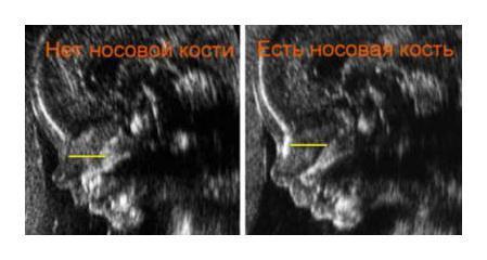На каком сроке УЗИ определяет беременность?