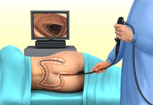 Ректосигмоскопия: показания, подготовка, проведение