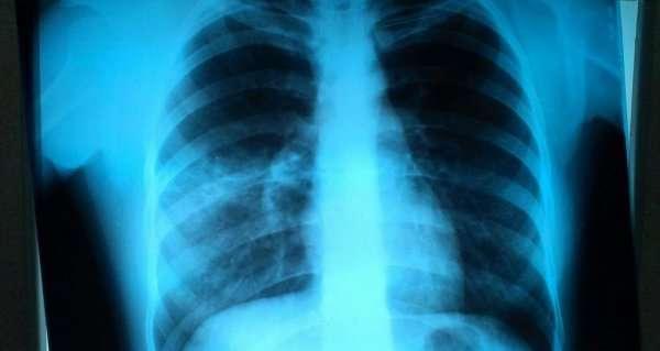 Рентген легких при пневмонии: признаки воспаления на снимке