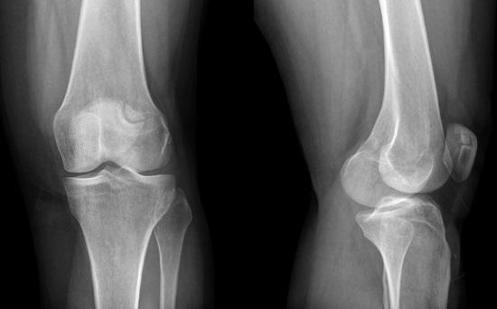 Рентген коленного сустава – что показывает снимок?