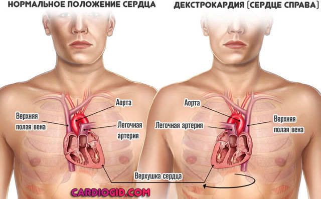 ЭКГ при декстрокардии