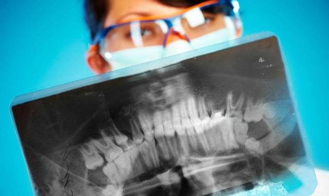 Внутриротовая рентгенография: виды, показания, проведение