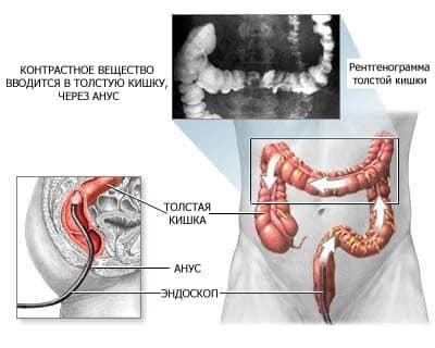 Ангиоскопия: показания, подготовка, проведение, осложнения и результаты