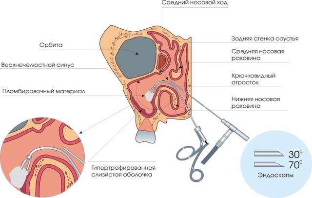 Эндоскопия кисты гаймеровой пазухи: подготовка, проведение, недостатки