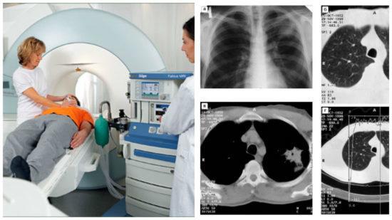 Компьютерная томография легких - что показывает КТ?