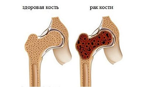 МРТ костей таза