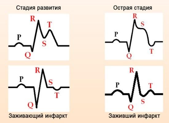 Плохая кардиограмма сердца: причины, опасность, лечение
