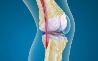 Рентген признаки остеопороза