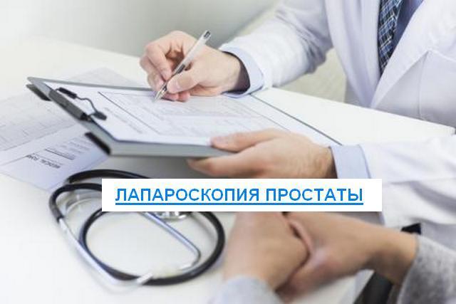 Лапароскопия аденомы простаты: показания, подготовка, осложнения