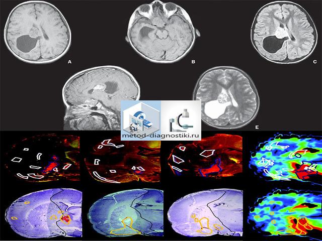 МРТ головного мозга при беременности: можно ли?