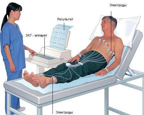 Какой врач делает ЭКГ?