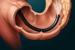 Показания и противопоказания к колоноскопии кишечника