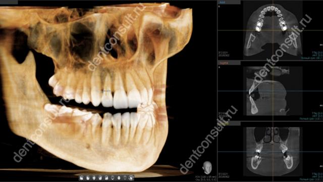 КТ верхней и нижней челюсти
