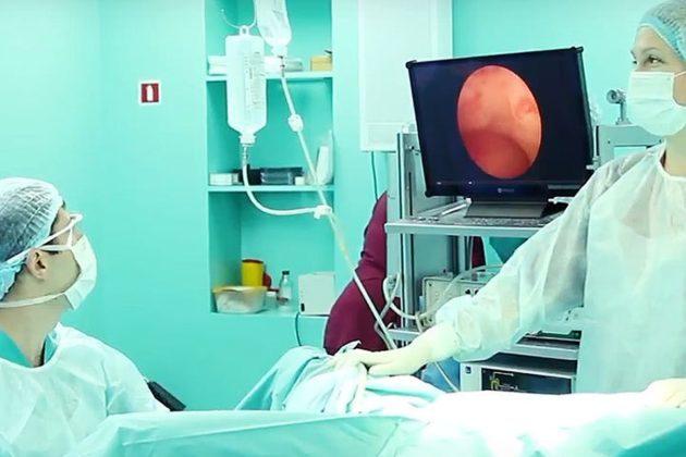 Месячные после гистероскопии: когда будут, обильные, болезненные