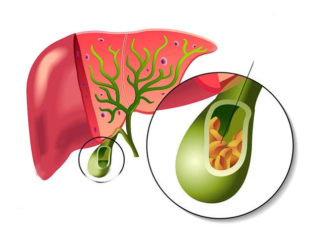 Лапароскопия по удалению желчного пузыря: подготовка, суть операции