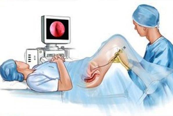 Цистоскопия мочевого пузыря у женщин: как делают, больно ли?
