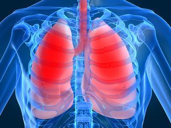 Рентген или КТ легких после мастэктомии?