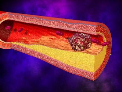 Вздутие живота после лапароскопии – что делать?