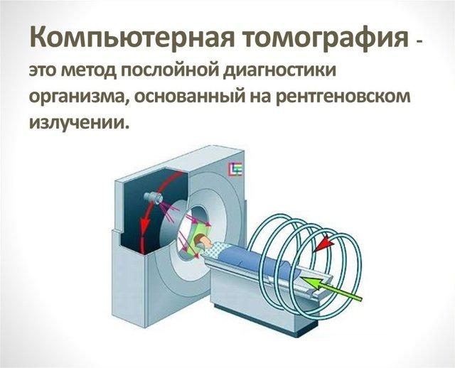 Рентген при туберкулезе легких: признаки на рентгеновском снимке