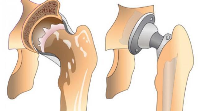 МРТ тазобедренного сустава: что показывает, проведение