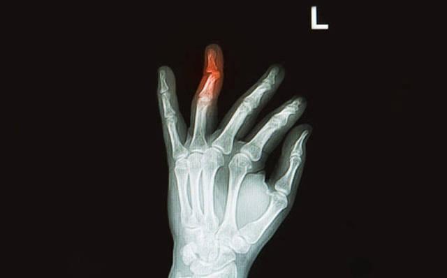 Рентгенограмма – что это такое?