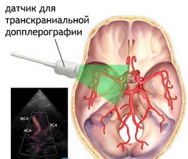 УЗИ головы и органов шеи: виды, показания, проведение, результаты